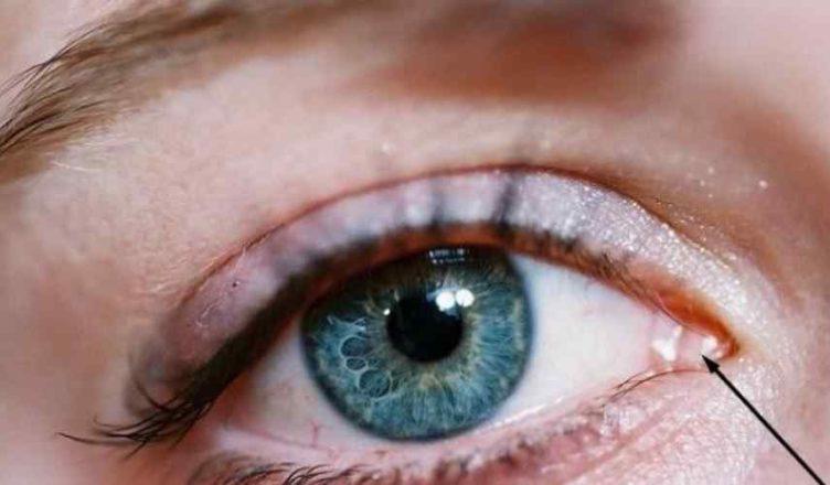 Por que temos essa membrana rosa no canto de nossos olhos ...